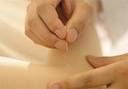Akupunktur MUTLU ediyor
