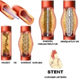 By-pass ve stent
