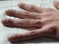 Parmaklar neden çomaklaþýr