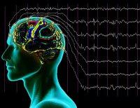 Dalgýnlýk epilepsi iþareti olabilir